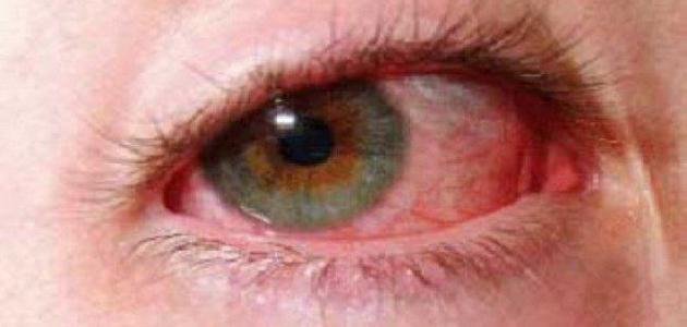 صورة سبب ارتفاع ضغط العين , دموع العين والامها