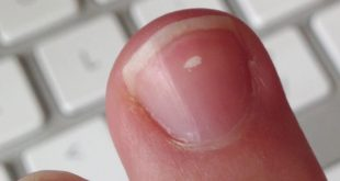 البقع البيضاء في الاظافر , اسباب وعلاج الاظافر من البقع البيضاء