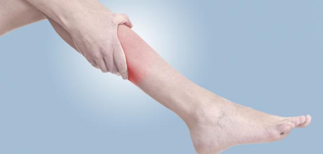 صورة اعراض الشد العضلي , اسباب وعلاج الشد العضلي