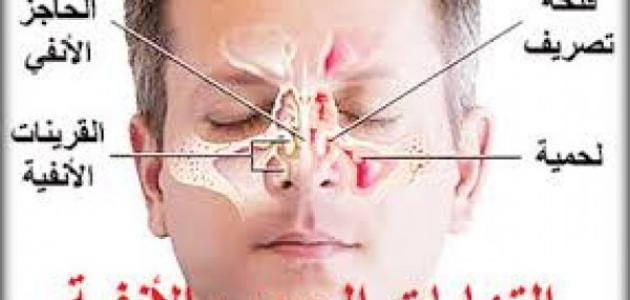 صورة علاج الجيوب الانفية المزمنة , اعراض التهاب الجيوب الانفيه