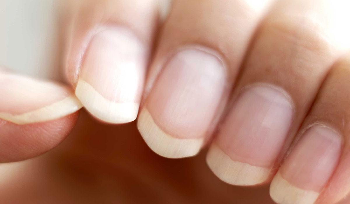 صور اللون الابيض في الاظافر , اسباب و علاج البقع البيضاء في الاظافر