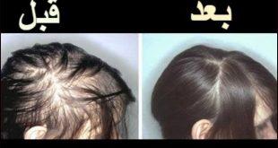 مدة نمو الشعر المتساقط , طرق لنمو الشعر بسهوله