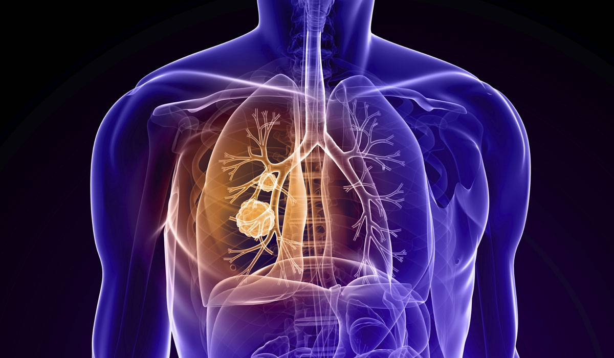 صور امراض الرئة وعلاجها بالاعشاب , اشعر بضيق في صدري