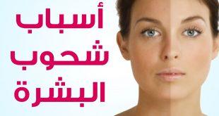 اسباب شحوب الوجه , اريد بشره صافية وجميلة