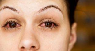 صور علاج دخول الزيت في العين , العين اهم عضو عند الانسان