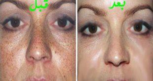 علاج الكلف من الوجه , وجهي به حروق شمس ماذا افعل