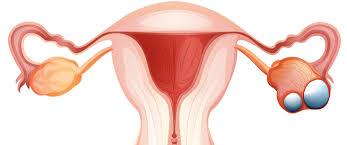 صورة اعراض سرطان الرحم الحميد , مرض سرطان الرحم
