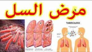 صور اعراض مرض الدرن , اعراض مرض السل