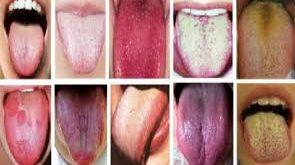 صور علاج رائحة الفم بسبب المعدة , وصفات لرائحة الفم الكريهه