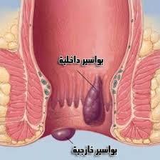 صور ما اعراض البواسير , ايه هو مرض البواسير