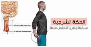 صور علاج حكة الدبر , مرض التهاب فتحة الشرج