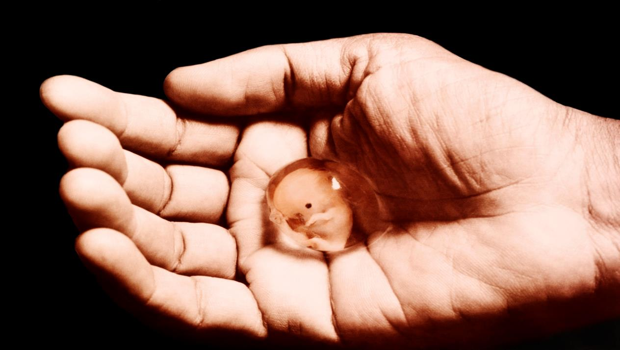 صورة ماهي اعراض الاجهاض , عزيزتى الحامل احذرى من هذه الاعراض