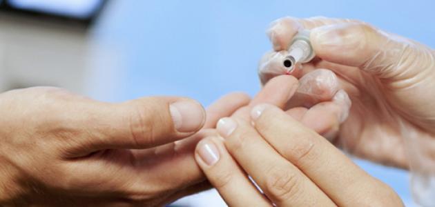 صورة نسبة هيموجلوبين الدم الطبيعية , معدل هيموجلوبين الدم في الجسم