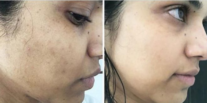 صورة ازالة البقع الداكنة من الوجه , وادعا ايتها البقعة الرخمة