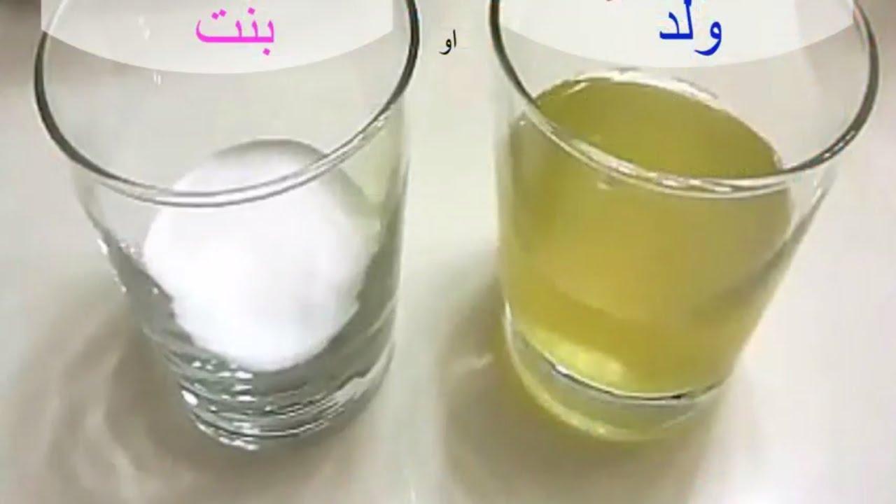 صورة معرفة نوع الجنين من لون البول , لون البول مختلف هل حامل فى بنت 2304 1