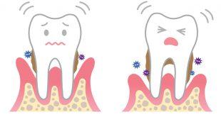 صورة علاج الاسنان بالاعشاب , الاعشاب ستحل كل المشاكل باذن الله