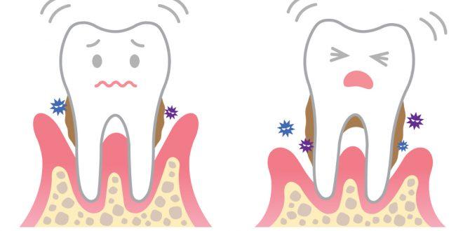 صور علاج الاسنان بالاعشاب , الاعشاب ستحل كل المشاكل باذن الله