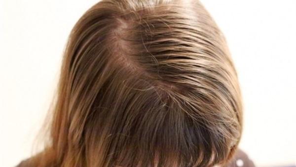 صورة التخلص من دهون الشعر , طرق متعدده للتخلص من دهون الشعر