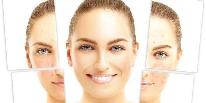 صورة علاج الندبات في الوجه , التخلص من اثار الندبات