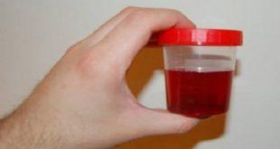 صورة سبب نزول الدم مع البول , امراض فى المسالك البوليه
