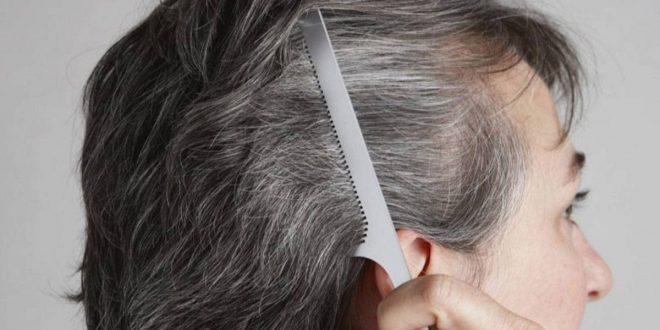 صورة علاج نقص صبغة الميلانين للشعر , علاج شيب الشعر المبكر