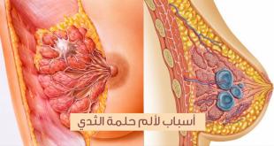 صورة الم حلمة الثدي , تعرف على اسباب الم الثدى