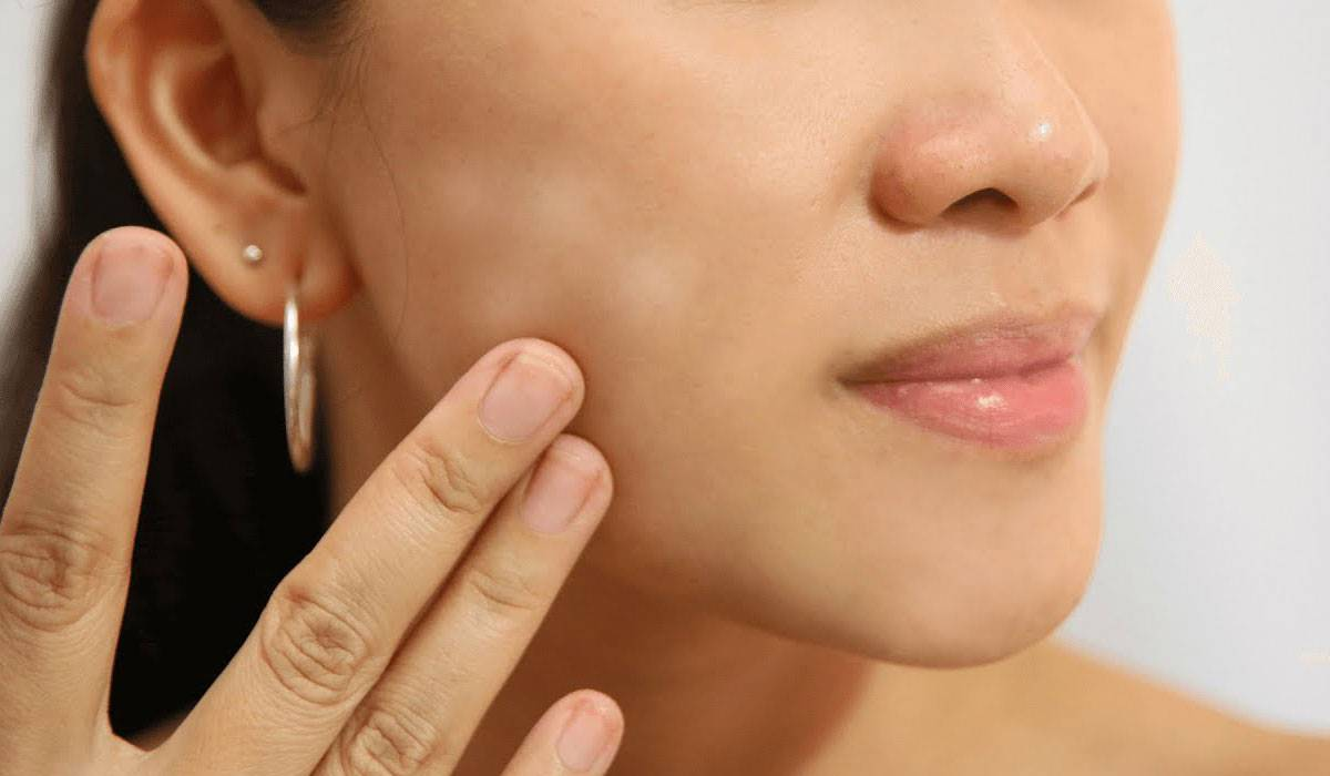 صورة ازالة البقع السوداء من الوجه بسرعة , التخلص من تصبغات الوجه 1672 1
