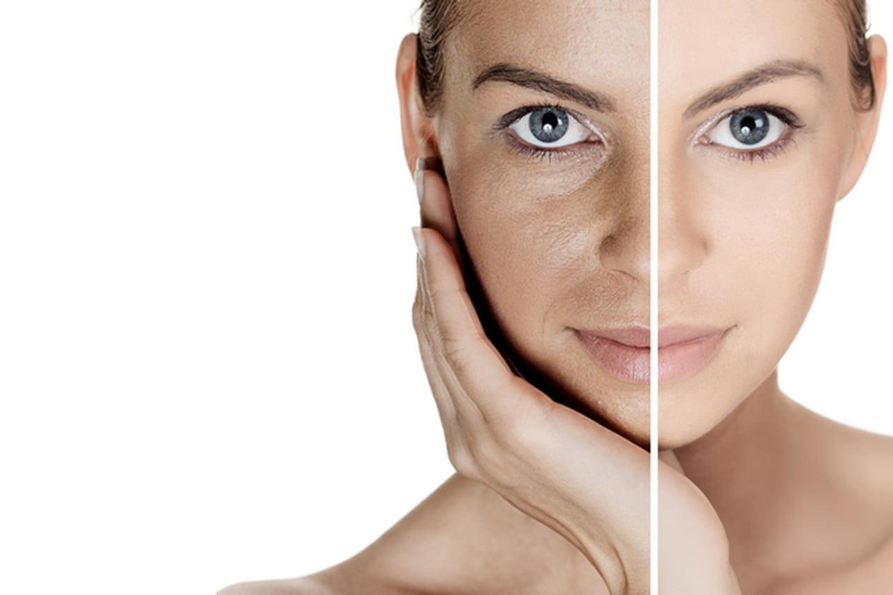صورة ازالة البقع السوداء من الوجه بسرعة , التخلص من تصبغات الوجه 1672 2