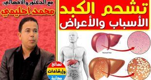 صورة علاج تشحم الكبد , مرض دهون الكبد