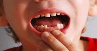 صورة رؤيا سقوط الاسنان في المنام , سقوط الاسنان خير ام شر