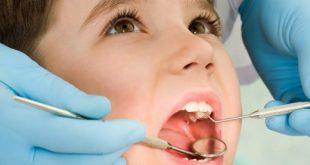 صورة افضل مضاد حيوي لخراج الاسنان , معالجة مشاكل الاسنان