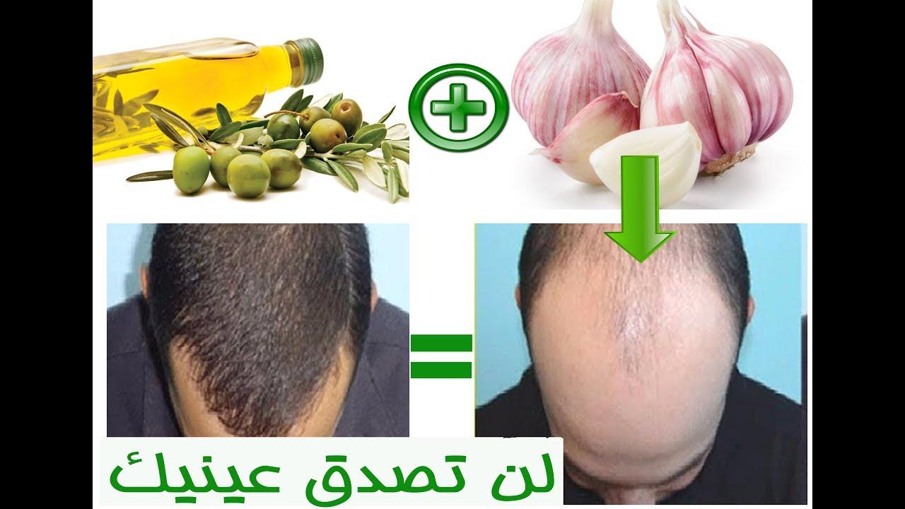 صورة علاج الشعر بالثوم , استمتعي بشعر رائع مع هذا النبات