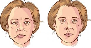 صورة ما هو الوهن , اذا ظهرت هذه الاعراض فانت مصاب بالوهن