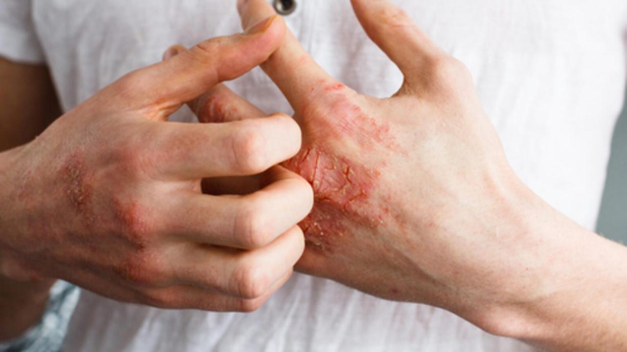 صورة علاج اكزيما اليدين والقدمين , تخلص من الاكزيما الى الابد