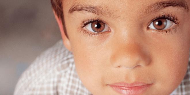 صورة اعراض انحراف العين , حالة ليست حرجة