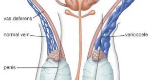 صورة اعراض ضمور الخصية , سن الياس قد يكون بداية لضمور الخصيتين