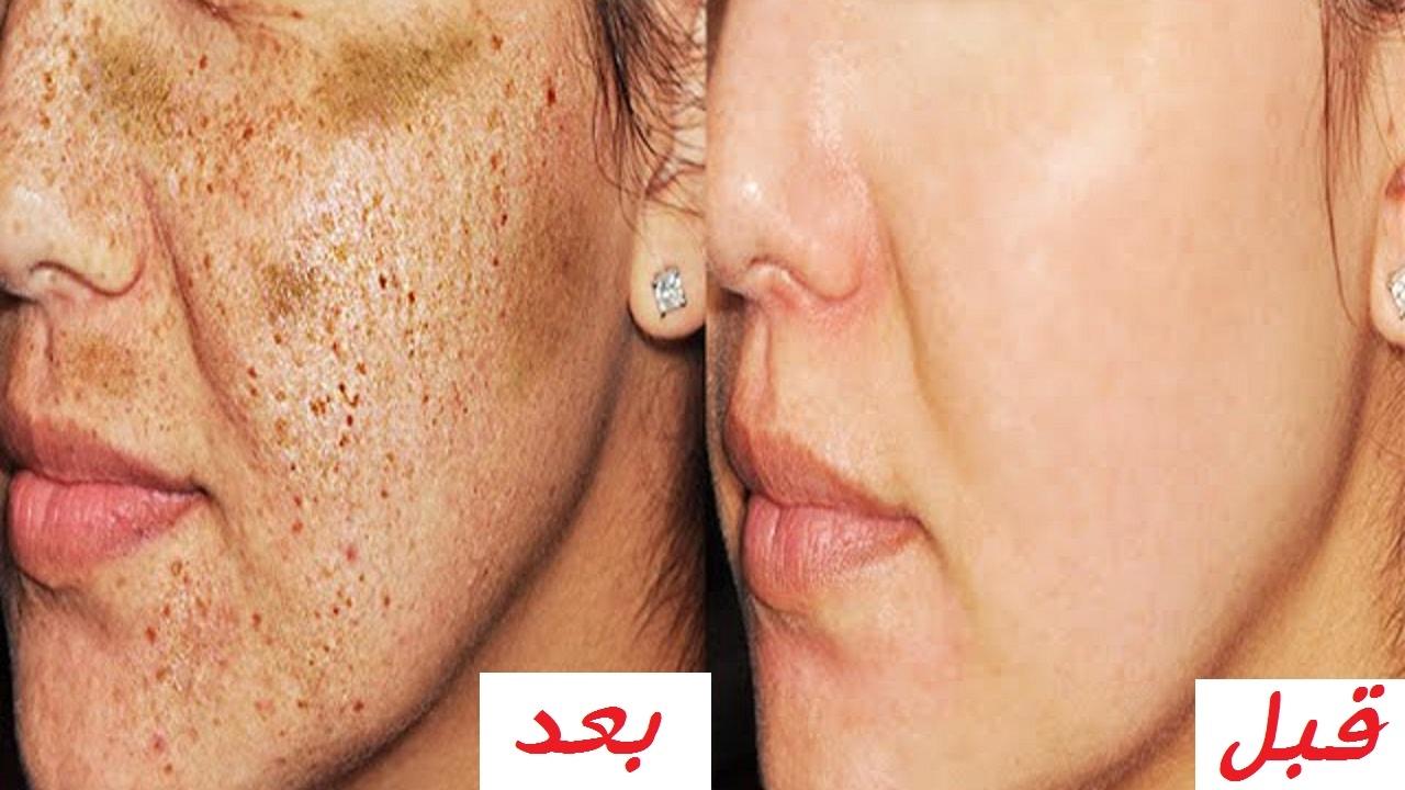 صورة لازالة البقع البنية من الوجه في اسبوع , كيفية استخدام دقيق الحمص للحصول على بشرة نقية 862 3