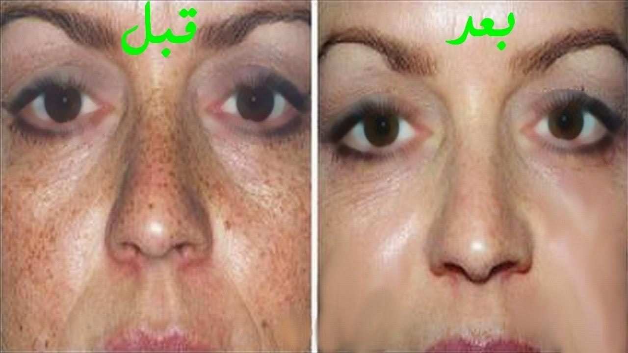 صورة لازالة البقع البنية من الوجه في اسبوع , كيفية استخدام دقيق الحمص للحصول على بشرة نقية 862 8