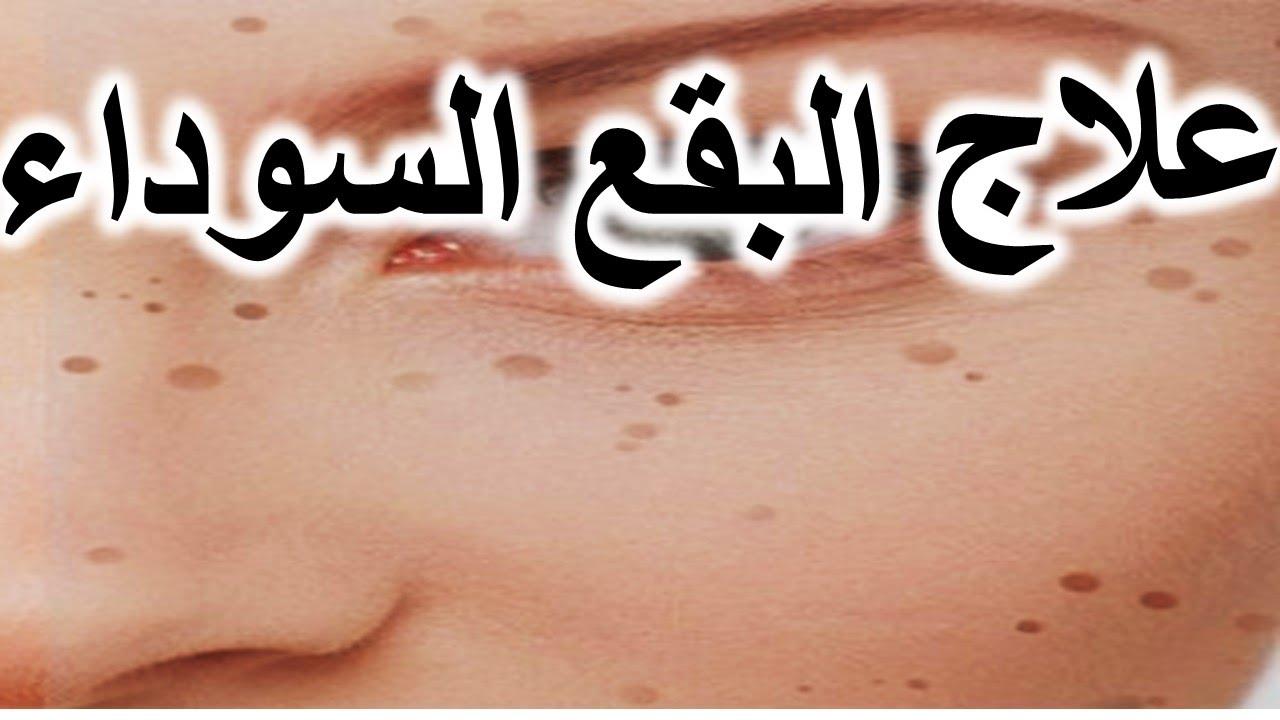 صورة لازالة البقع البنية من الوجه في اسبوع , كيفية استخدام دقيق الحمص للحصول على بشرة نقية 862
