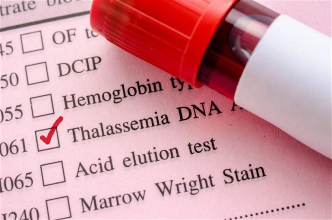 صورة علاج مرض الثلاسيميا , مرض اغلب المواليد