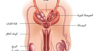 علاج التهاب البربخ